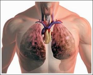 oslozhnenija-grippa_2