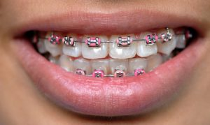 зубные брекеты